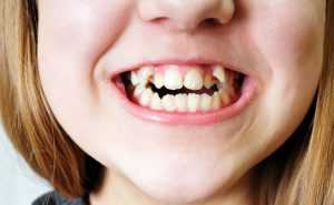Girl smiling showing bad crooked teeth
