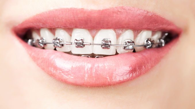 Close up shot of a lady with metal teeth braces
