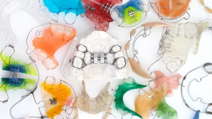 Different kinds of retainers