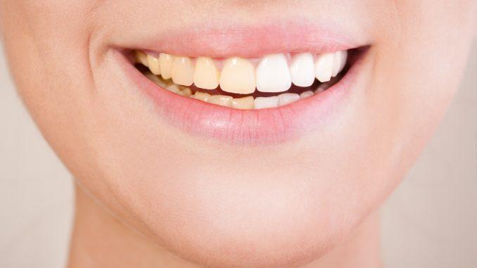 close up shot of woman's teeth